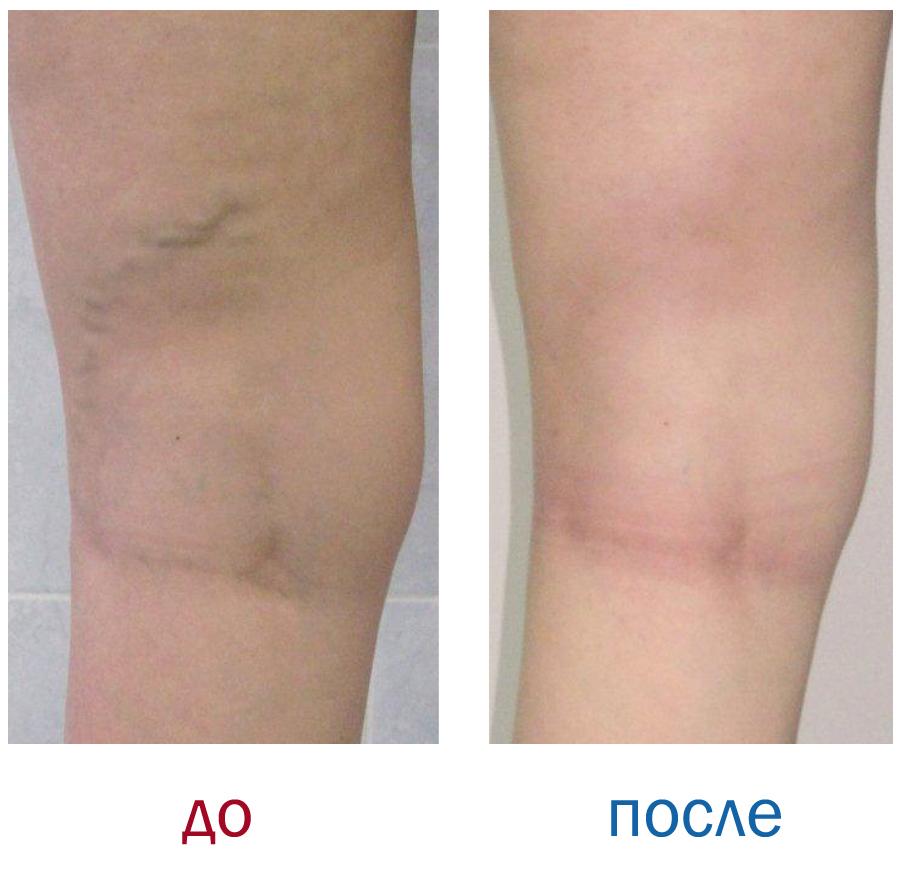 Лечение преждевременной эякуляции 24 фотография