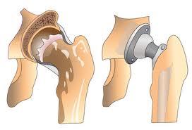 Заболевания крупных суставов мазь алезан для суставов цена по кокшетау