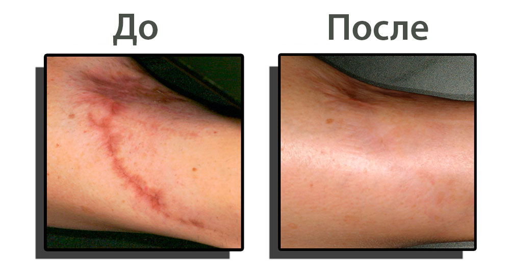 scars-removal-before-after.jpg