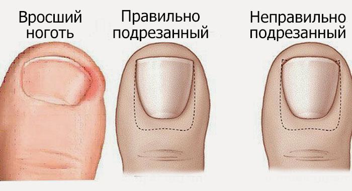 prichiny-vrostaniya.jpg